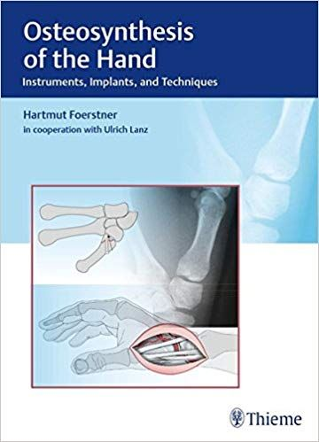 Osteosynthesis of the Hand 1st Edition 2016 By Förstner
