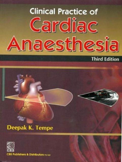 Cardiac  Ansthesia