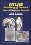 Atlas: Pathology of Tumours of the Central Nervous System